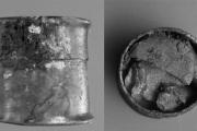 Древние римляне и греки лечили глаза цинком